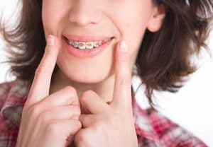 Orthodontist in Lexington, SC