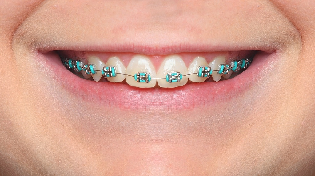 Best Braces near Elgin