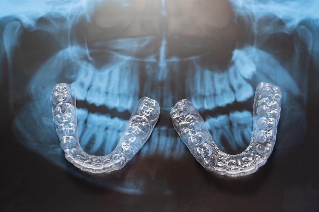 Best Orthodontist in Columbia SC
